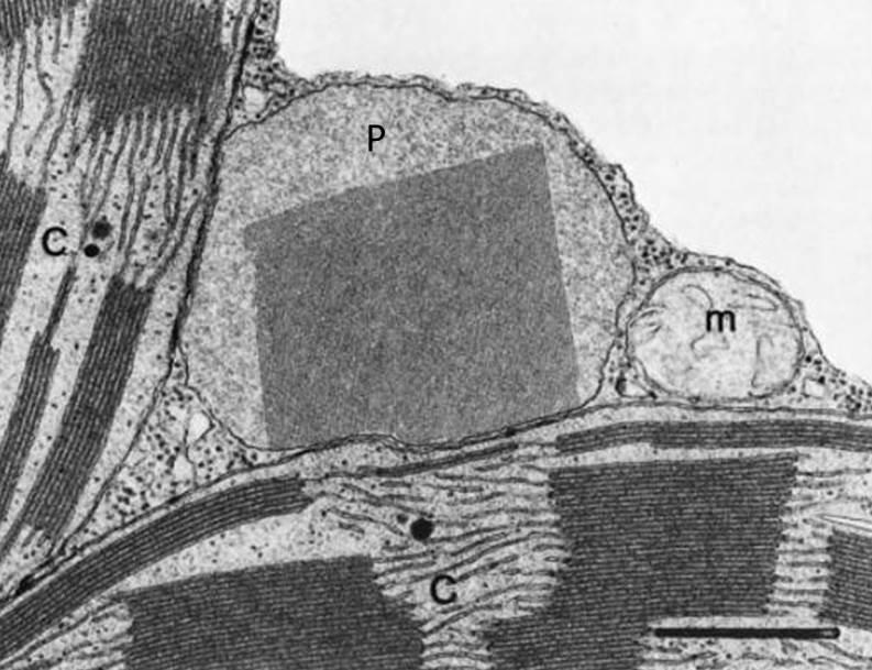 """Fig 3. Micrografía mostrando los tres orgánulos implicados en la fotorrespiración, donde se aprecia la localización de la catalasa en la matriz del peroxisoma como una inclusión de forma cuadrada. Imagen sacada del libro """"Plant Peroxisomes"""" (Huang et al, 1983). C, cloroplasto, m , mitocondria, P, peroxisoma)."""
